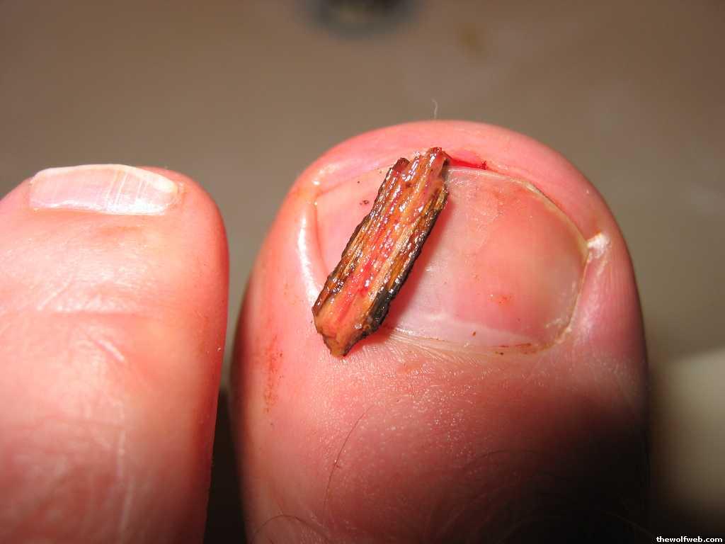 TWW - ingrown toenail...